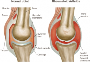 http://blog.proboostdirect.com/disease-states/rheumatoid-arthritis-ra-and-the-immune-system/